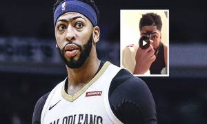 Has Anthony Davis changed his Signature look Shaving his Unibrow? Or is it just an April Fool?