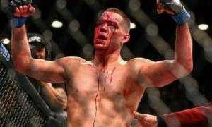 Nate Diaz's explains, his Absence from Octagon has nothing to do with trilogy fight against Conor McGregor